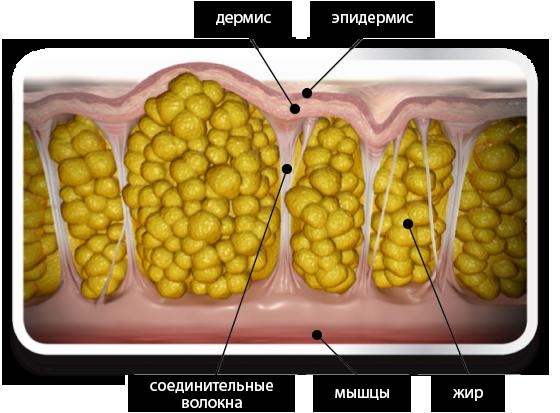 Что такое целлюлит и как с ним бороться